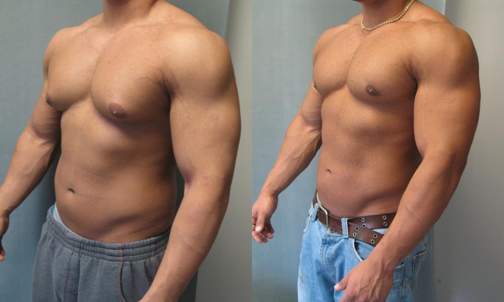 Swollen breasts in men