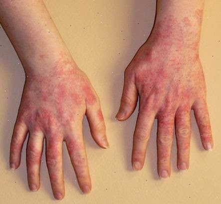 how to treat latex glove allergy