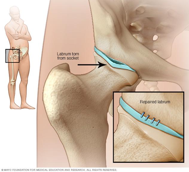 Hip impingement - Symptoms and causes