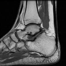 MRI-ANKLE JOINT (BOTH) LabTest