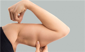5 Exercises For Flabby Arms That Every Woman Should Try