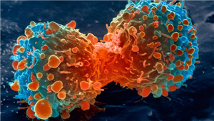 Cancer: Overview, Symptoms, Types Diagnostic and Treatments